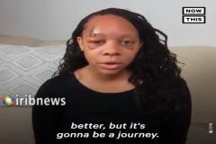 تیراندازی پلیس آمریکا به صورت زن سیاه پوست